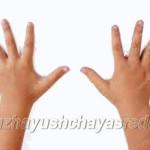 У ребенка потеют руки