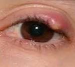 Как-лечить-ячмень-на-глазу-у-ребенка-2