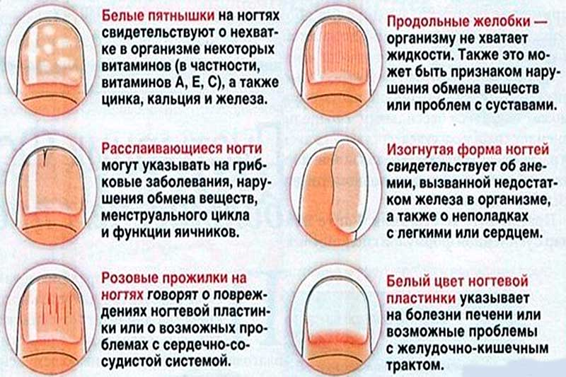 Как определить заболевание по ногтям рук