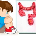 Амебиаз-у-детей--симптомы-и-лечение