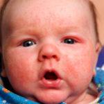Чем лечить конъюнктивит у детей до года