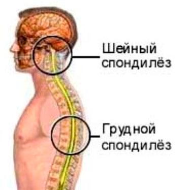 Остеохондроз спондилез грудного отдела позвоночника