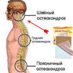 Перцовый пластырь при шейном остеохондрозе
