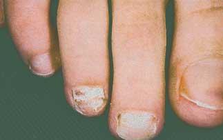 если слоятся ногти на ногах причина